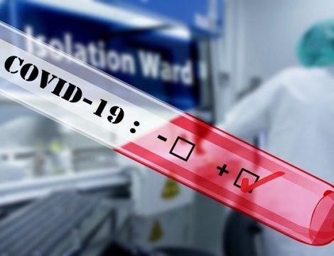 Coronavirus 2020 Positive Covid-19 test